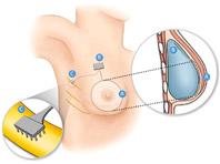 Новые технологии вернут чувствительность груди после операции