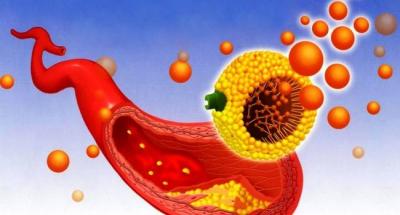 Как понизить уровень холестерина в крови без лекарств