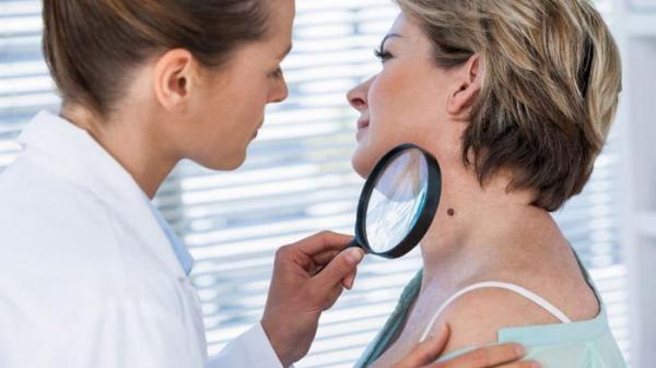 Отличия между бородавками и папилломами: лечение и удаление