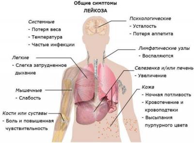 Первые симптомы рака крови