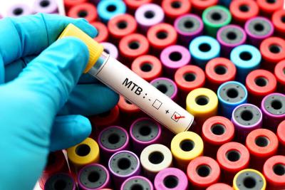 Туберкулёз: почему о нём не принято говорить и как лечат это заболевание в 2020 году